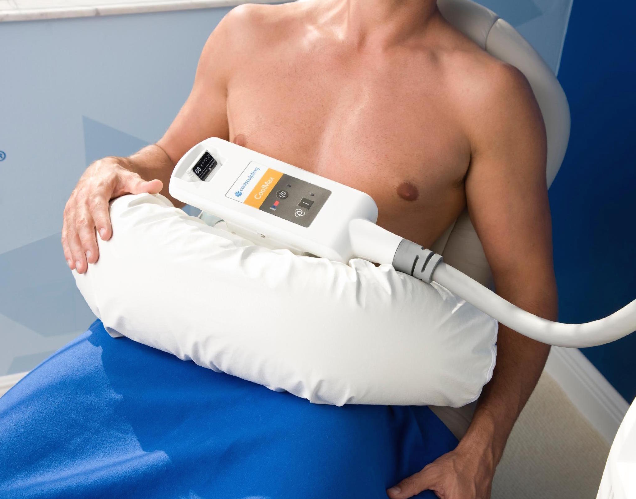 Coolsculpting (1 cycle)